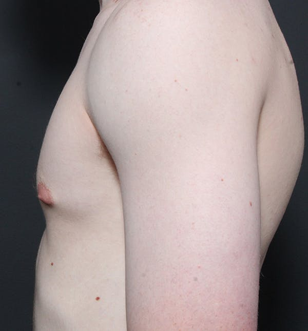 Male Chest Reduction Gallery - Patient 14089646 - Image 5
