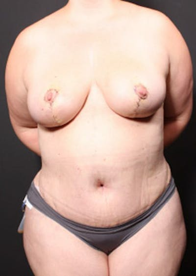 Breast Reduction Gallery - Patient 14089649 - Image 4