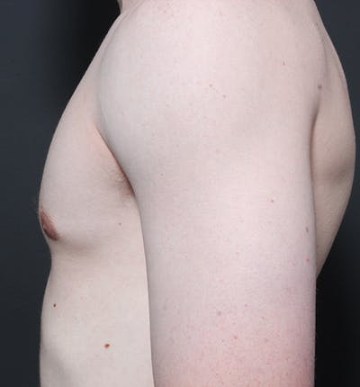 Male Chest Reduction Gallery - Patient 14089646 - Image 6