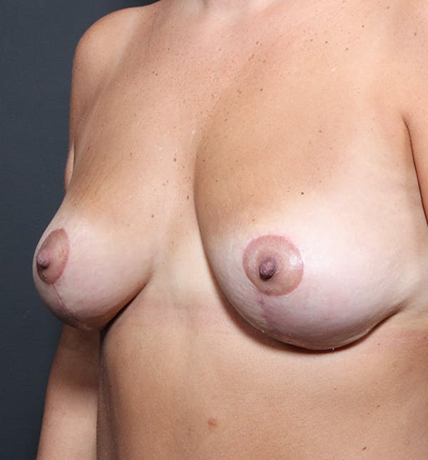 Breast Lift Mastopexy Gallery - Patient 14089651 - Image 2