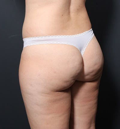 Brazilian Butt Lift Gallery - Patient 14089654 - Image 1