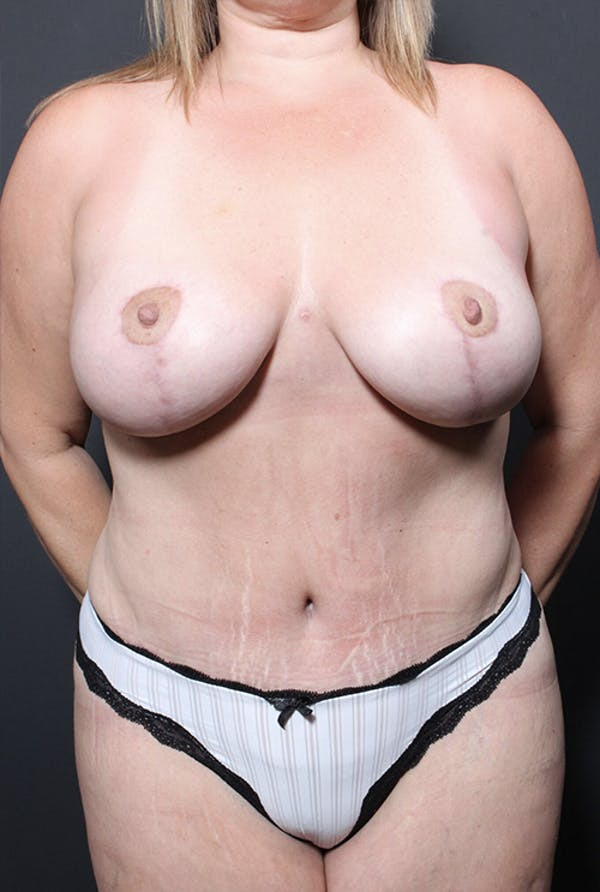 Mommy Makeover Gallery - Patient 14089648 - Image 4