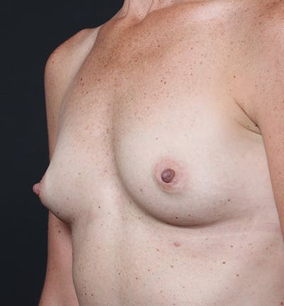 Breast Augmentation Gallery - Patient 14089658 - Image 1