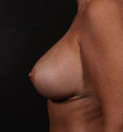 Breast Implant Revision Gallery - Patient 14089647 - Image 6