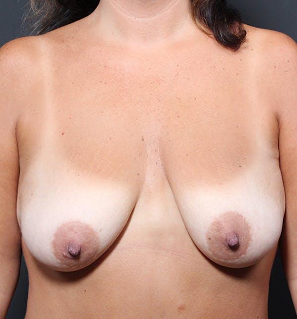 Breast Lift Mastopexy Gallery - Patient 14089651 - Image 3