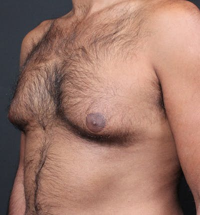 Male Chest Reduction Gallery - Patient 14089652 - Image 1