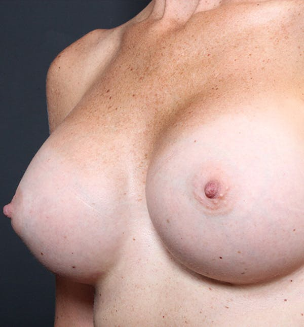 Breast Augmentation Gallery - Patient 14089658 - Image 2