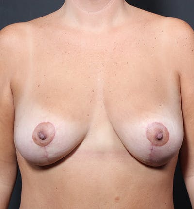 Breast Lift Mastopexy Gallery - Patient 14089651 - Image 4