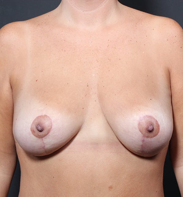 Breast Lift Mastopexy Gallery - Patient 14089651 - Image 4