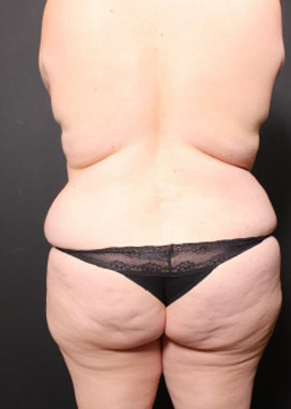 Breast Reduction Gallery - Patient 14089649 - Image 7