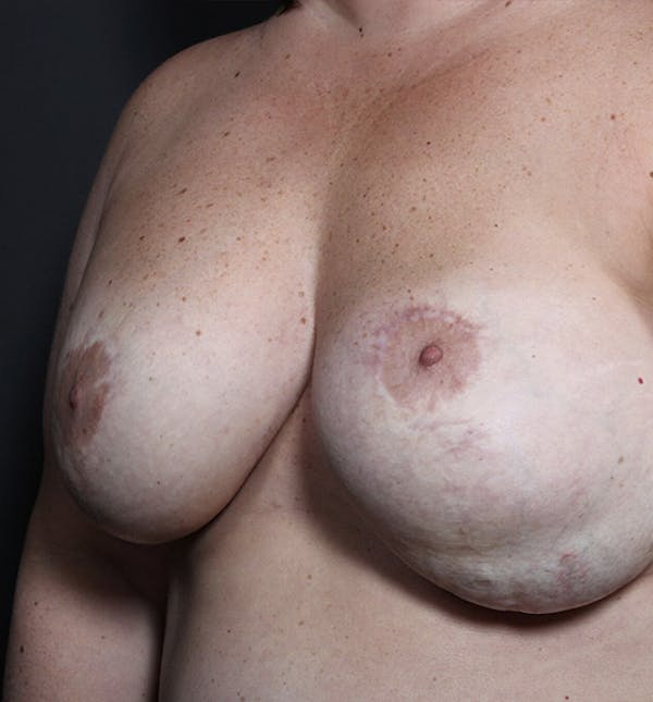 Breast Implant Revision Gallery - Patient 14089653 - Image 1