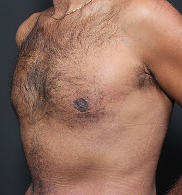 Male Chest Reduction Gallery - Patient 14089652 - Image 2