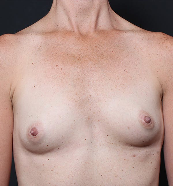 Breast Augmentation Gallery - Patient 14089658 - Image 3