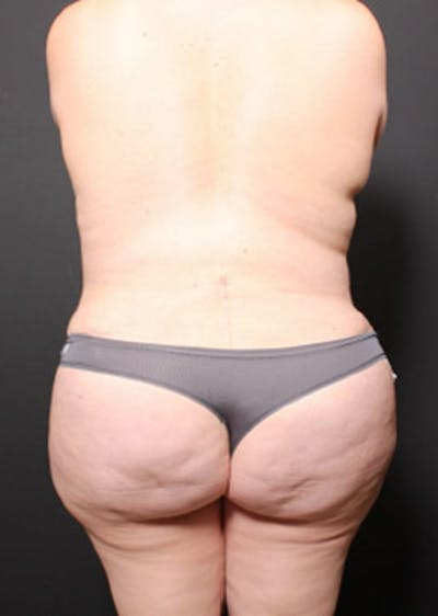 Breast Reduction Gallery - Patient 14089649 - Image 8