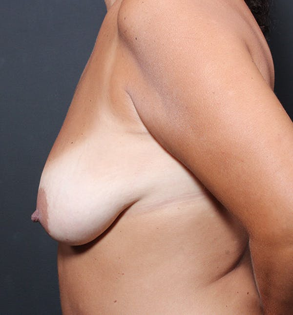 Breast Lift Mastopexy Gallery - Patient 14089651 - Image 5