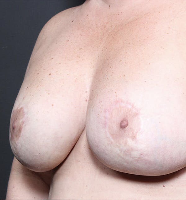 Breast Implant Revision Gallery - Patient 14089653 - Image 2