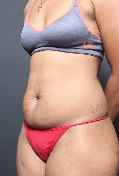 Tummy Tuck Gallery - Patient 14089669 - Image 1