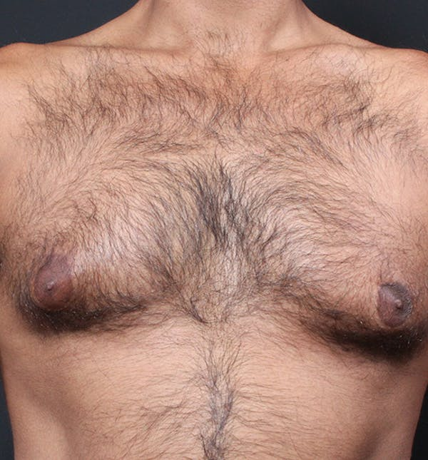 Male Chest Reduction Gallery - Patient 14089652 - Image 3
