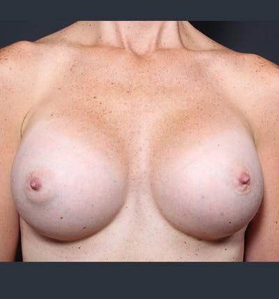 Breast Augmentation Gallery - Patient 14089658 - Image 4