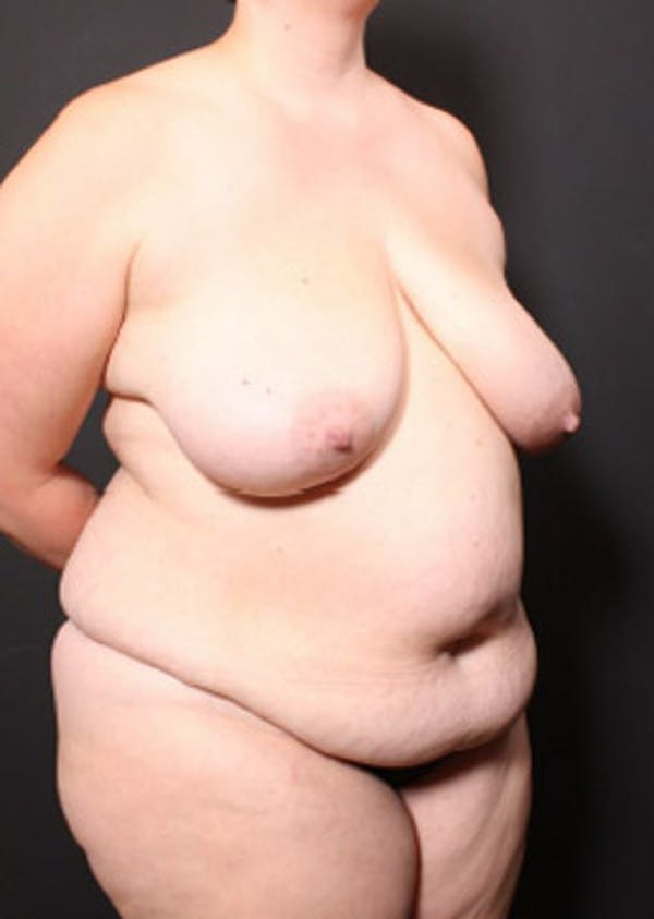 Breast Reduction Gallery - Patient 14089649 - Image 9