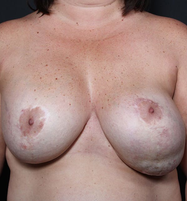 Breast Implant Revision Gallery - Patient 14089653 - Image 3