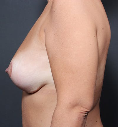 Breast Lift Mastopexy Gallery - Patient 14089651 - Image 6