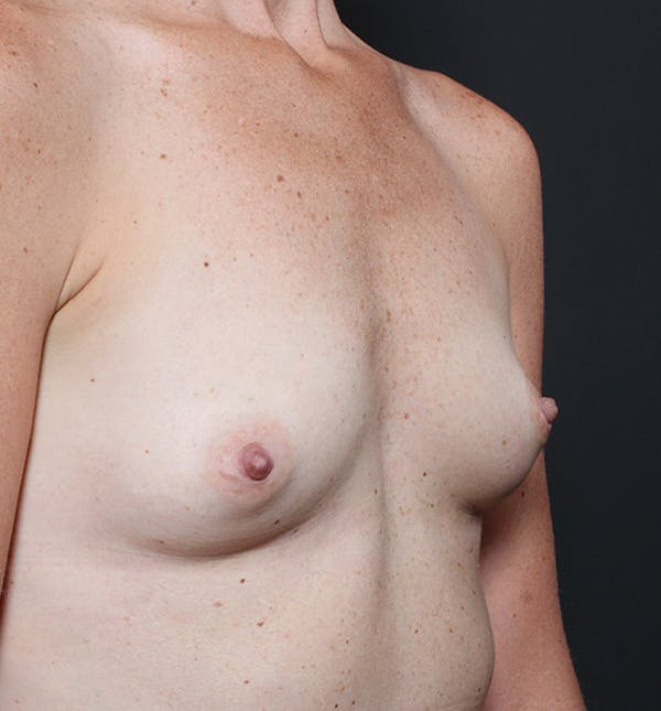 Breast Augmentation Gallery - Patient 14089658 - Image 5