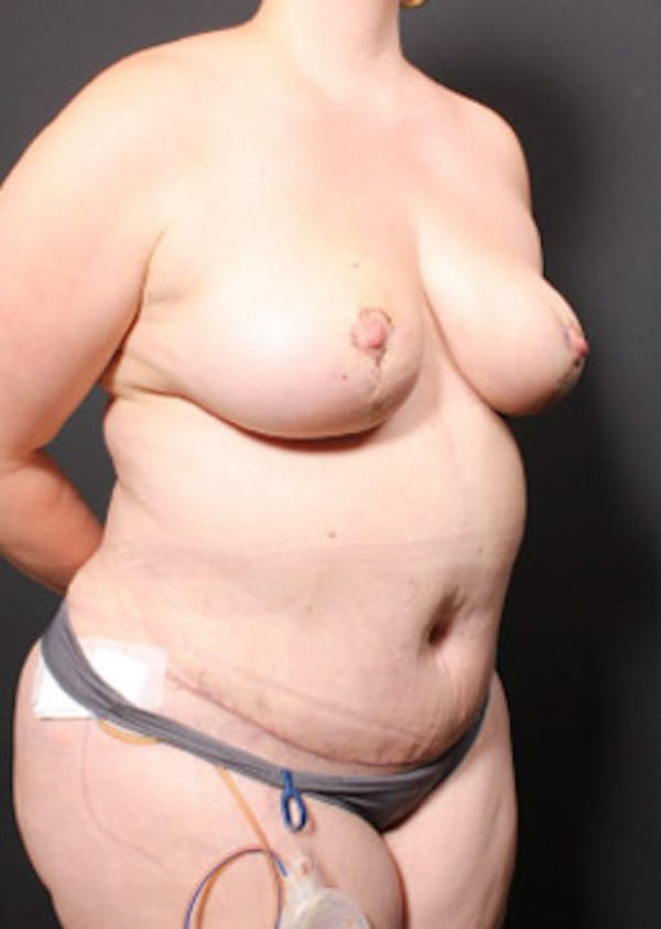 Breast Reduction Gallery - Patient 14089649 - Image 10