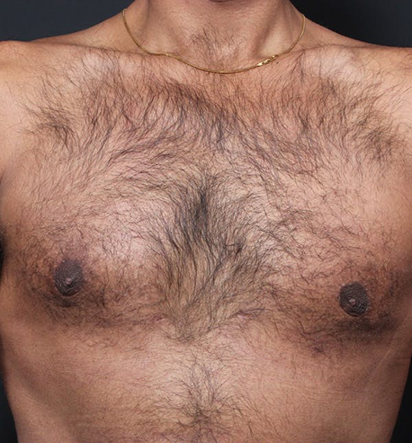 Male Chest Reduction Gallery - Patient 14089652 - Image 4