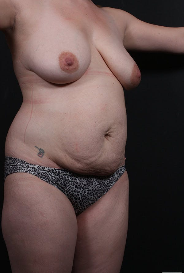 Mommy Makeover Gallery - Patient 14089660 - Image 1