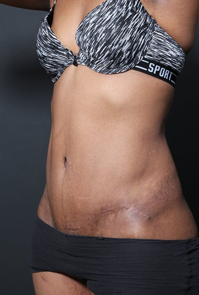 Tummy Tuck Gallery - Patient 14089669 - Image 2