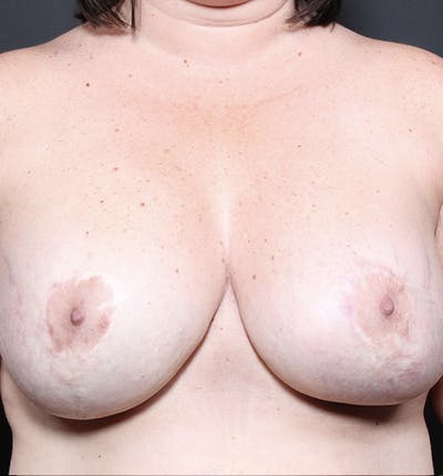 Breast Implant Revision Gallery - Patient 14089653 - Image 4