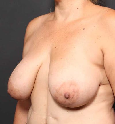 Breast Reduction Gallery - Patient 14089661 - Image 1