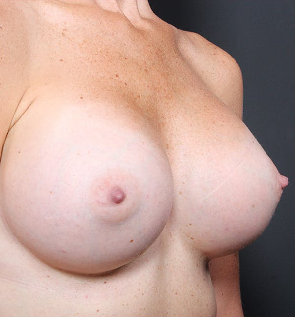 Breast Augmentation Gallery - Patient 14089658 - Image 6