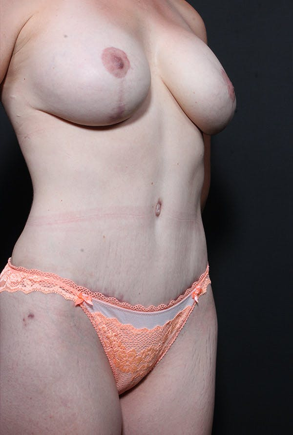 Mommy Makeover Gallery - Patient 14089660 - Image 2