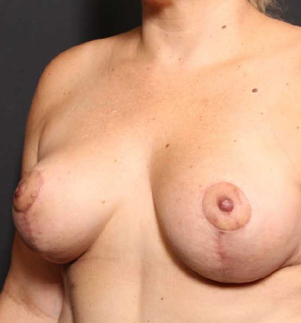 Breast Reduction Gallery - Patient 14089661 - Image 2