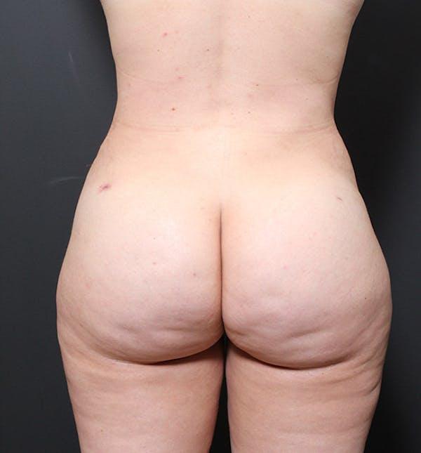 Brazilian Butt Lift Gallery - Patient 14089654 - Image 8