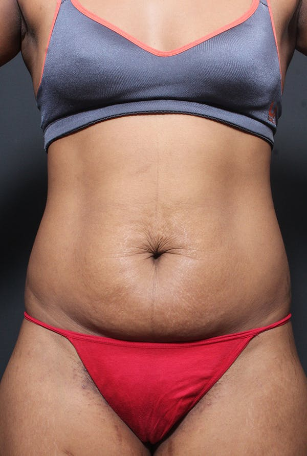 Tummy Tuck Gallery - Patient 14089669 - Image 3