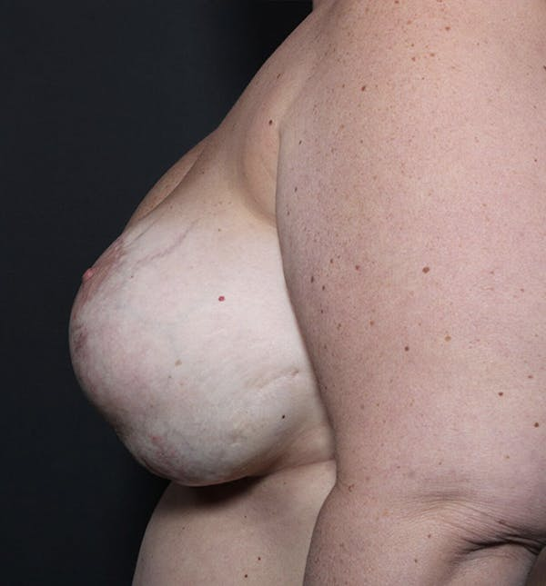 Breast Implant Revision Gallery - Patient 14089653 - Image 5