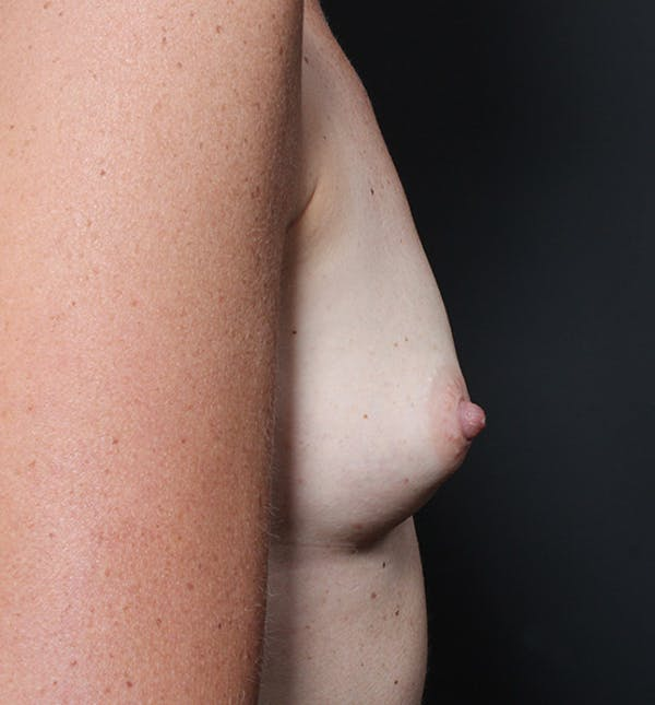 Breast Augmentation Gallery - Patient 14089658 - Image 7