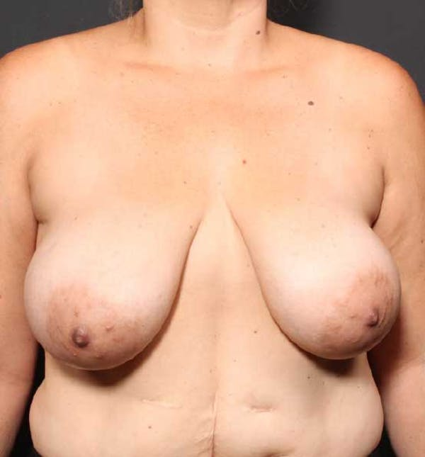 Breast Reduction Gallery - Patient 14089661 - Image 3