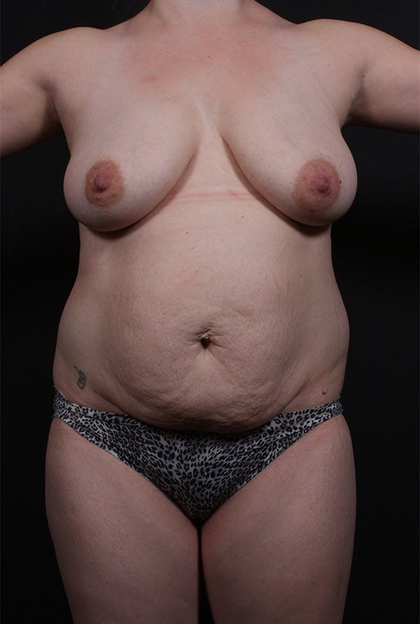 Mommy Makeover Gallery - Patient 14089660 - Image 3