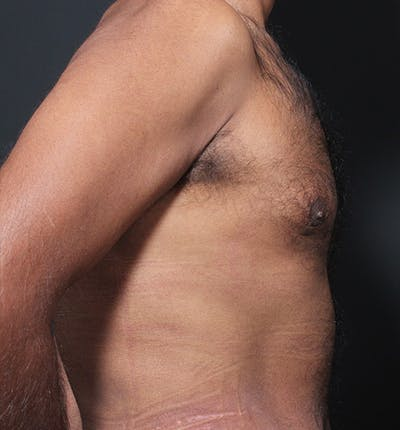 Male Chest Reduction Gallery - Patient 14089652 - Image 6