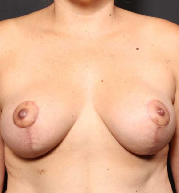 Breast Reduction Gallery - Patient 14089661 - Image 4