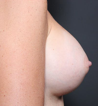 Breast Augmentation Gallery - Patient 14089658 - Image 8