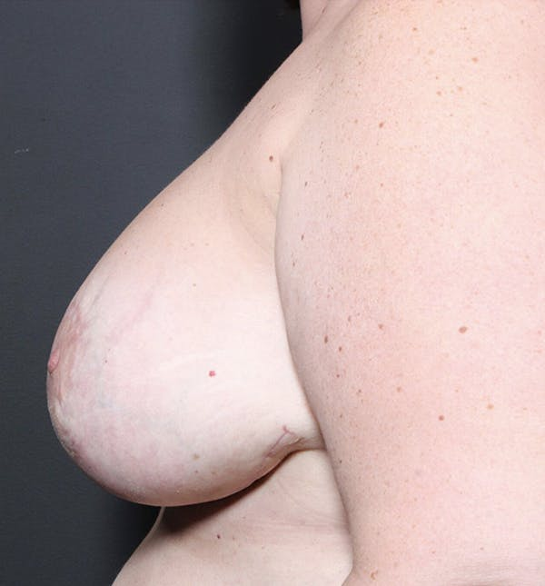 Breast Implant Revision Gallery - Patient 14089653 - Image 6