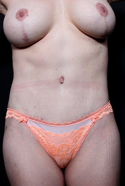 Mommy Makeover Gallery - Patient 14089660 - Image 4