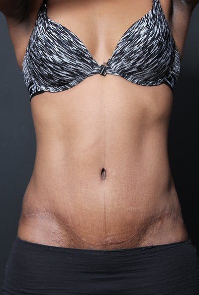 Tummy Tuck Gallery - Patient 14089669 - Image 4