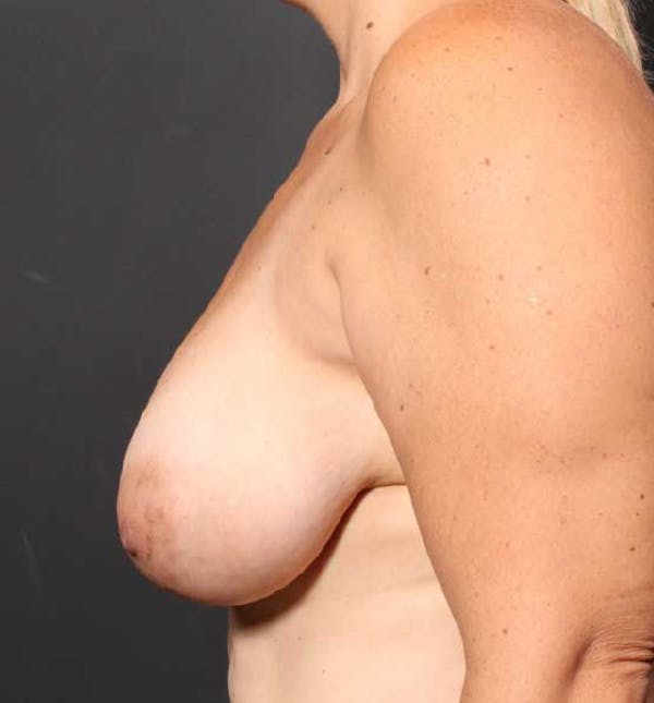 Breast Reduction Gallery - Patient 14089661 - Image 5