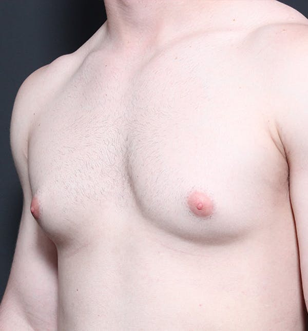 Male Chest Reduction Gallery - Patient 14089664 - Image 1